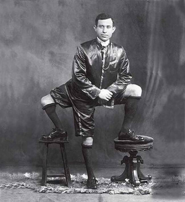Frank Lentini, photo ancienne, anomalies physiques, photos anciennes handicap, photos anciennes physique, photos anciennes maladie, vieille photo maladie