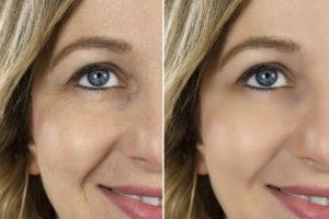 Retouche de texture de peau sur le visage